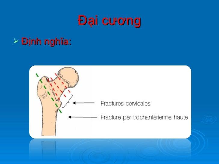 Gãy cổ xương đùi Slide 2