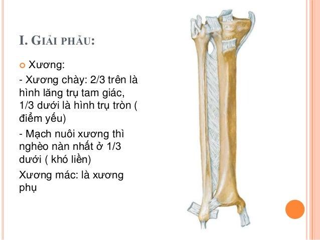 Gãy hai xương cẳng chân Slide 3