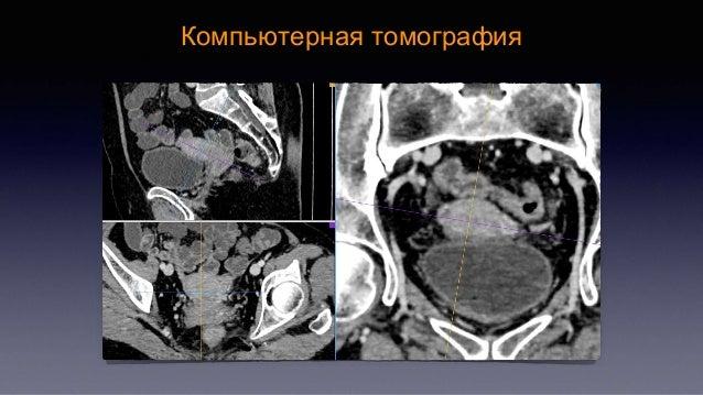 Снимки компьютерной томографии при ректовагинальном эндометриозе смотреть