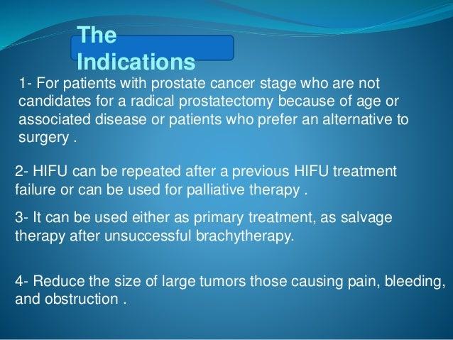 HIFU Technique of Prostate Cancer