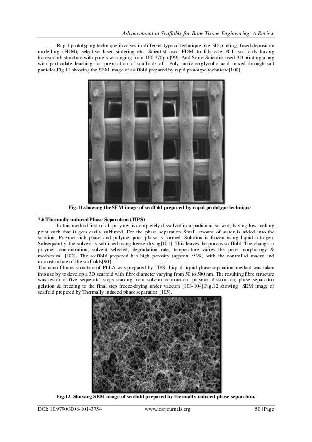 Advancement In Scaffolds For Bone Tissue Engineering  A Review