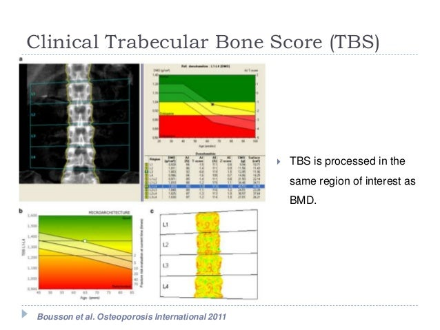 tbs score Bone score and bone strength, the effects of dual-energy x-ray absorptiometry  image spatial  the trabecular bone score (tbs) was devel.
