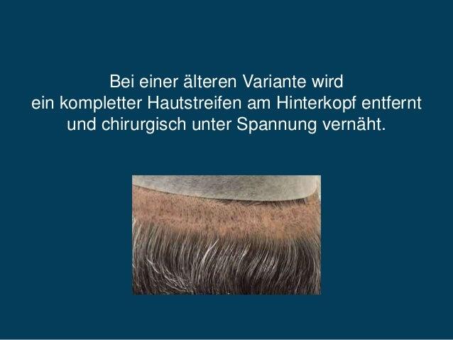 Haartransplantation von Pure Hair Slide 3