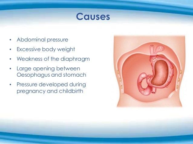 medifast weight loss