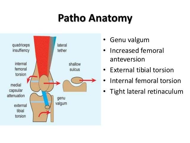 Habitual dislocation of patella