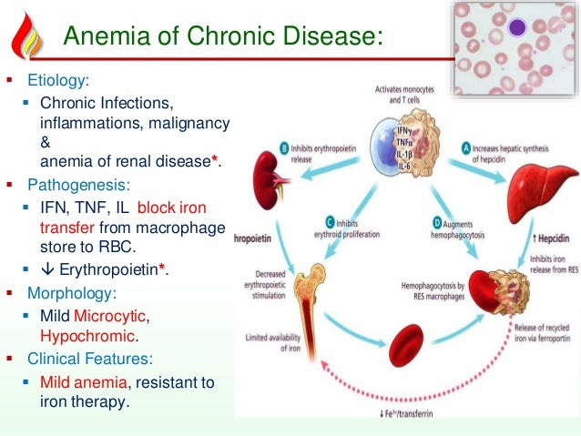 iron deficiency anemia case study answers