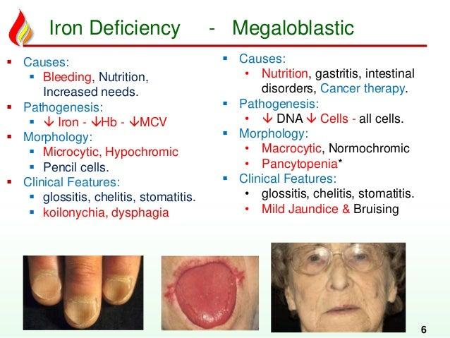 Haem12: Deficiency anemias