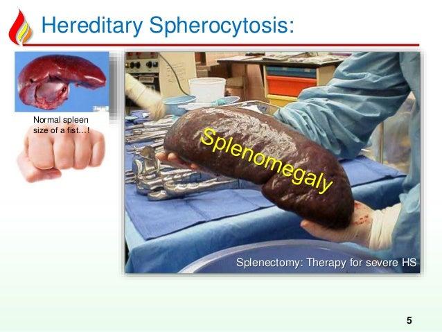 Haem14 Hemolytic Anemia Congenital