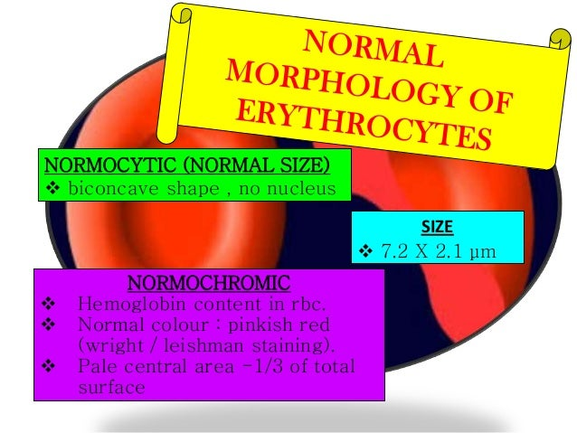 Abnormal Red Blood Cell Size