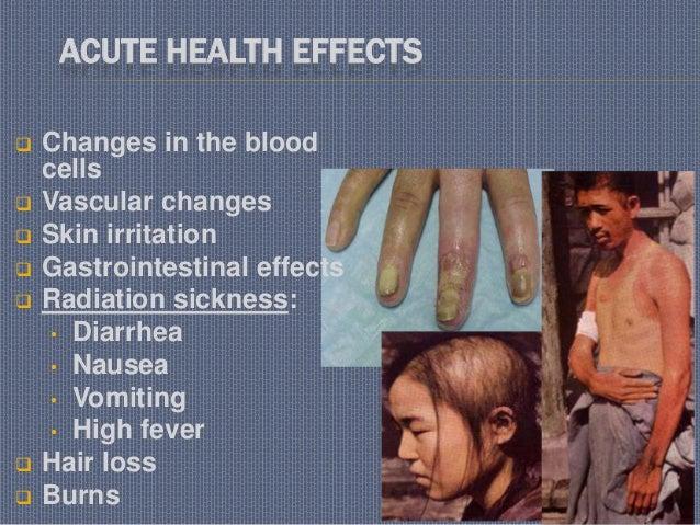 Hematological disorders
