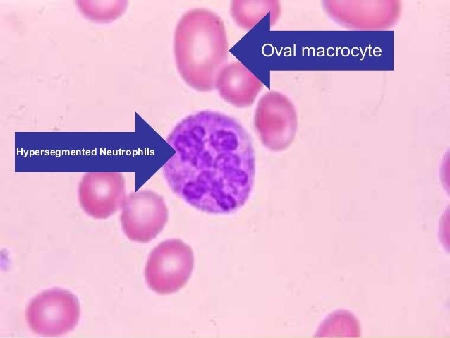 Haematology B12 Deficiency Smear