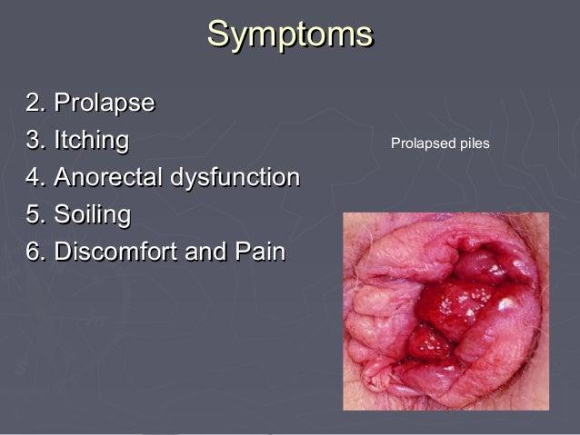 Anoscope Hemorrhoid