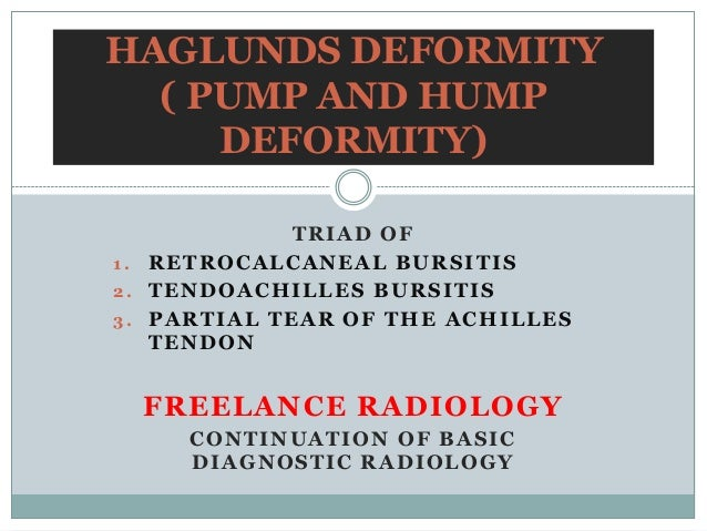 HAGLUNDS DEFORMITY  ( PUMP AND HUMP     DEFORMITY)             TRIAD OF1. RETROCALCANEAL BURSITIS2. TENDOACHILLES BURSITIS...