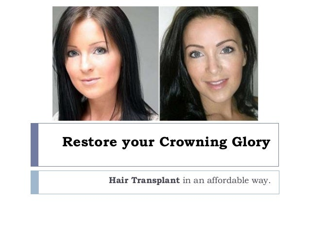 Restore your Crowning Glory Hair Transplant in an affordable way.