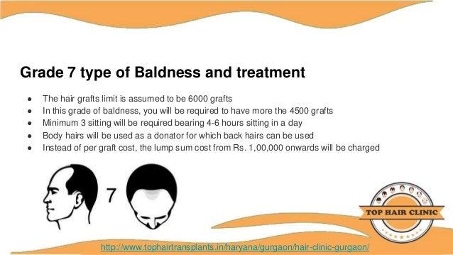 Hair Clinic Transplant & Treatment Gurgaon