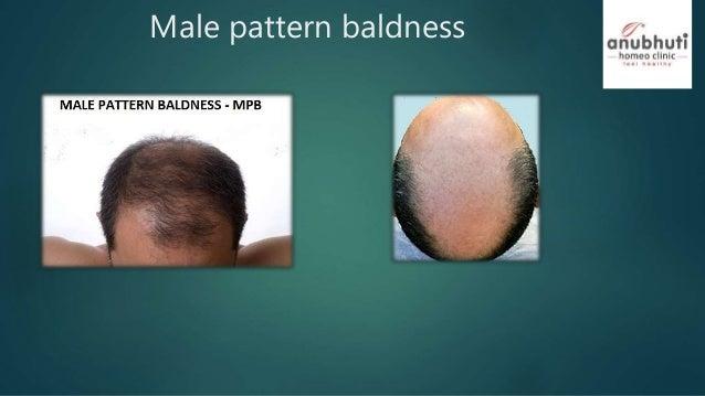 hair loss alopecia baldness male pattern hair loss and