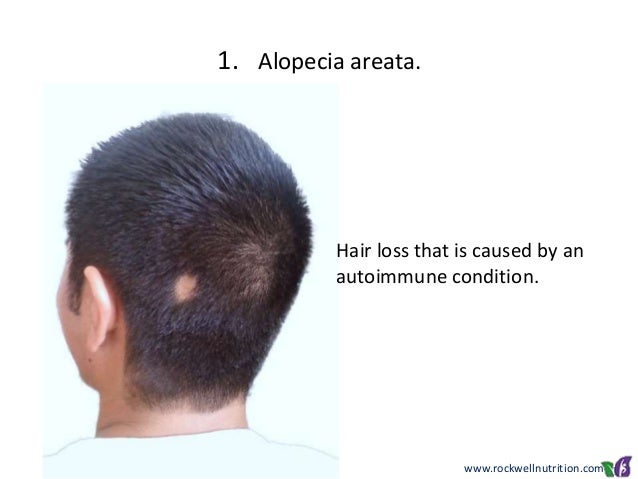 the causes and treatment of hair loss alopecia areata Alopecia areata is an autoimmune disease that involves the immune system attacking the cells in your hair follicles, leading to hair loss the most common symptoms of alopecia areata include patchy hair loss and nail changes, such as depressions in your fingernails, vertical ridges along your nails and rough nail texture.