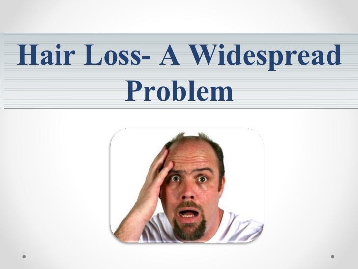 Hair Loss- A Widespread Problem