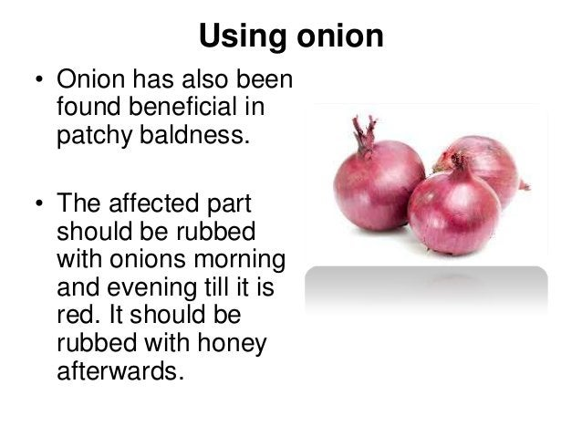 Using onion • Onion has also been found beneficial in patchy baldness. • The affected part should be rubbed with onions mo...