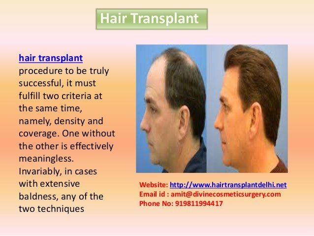 Hair Transplant hair transplant procedure to be truly successful, it must fulfill two criteria at the same time, namely, d...