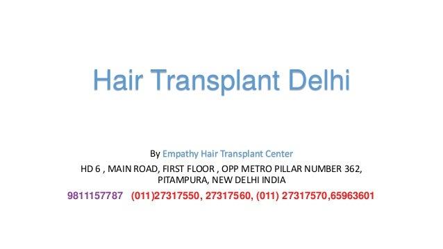 Hair Transplant Delhi By Empathy Hair Transplant Center HD 6 , MAIN ROAD, FIRST FLOOR , OPP METRO PILLAR NUMBER 362, PITAM...