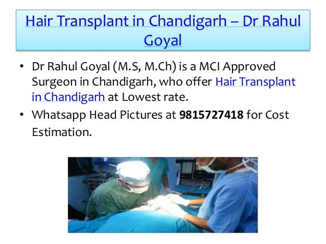 Hair Transplant in Chandigarh – Dr Rahul Goyal • Dr Rahul Goyal (M.S, M.Ch) is a MCI Approved Surgeon in Chandigarh, who o...