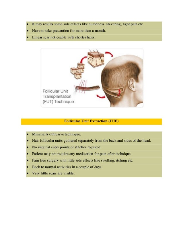 Hair transplant in indore Slide 3