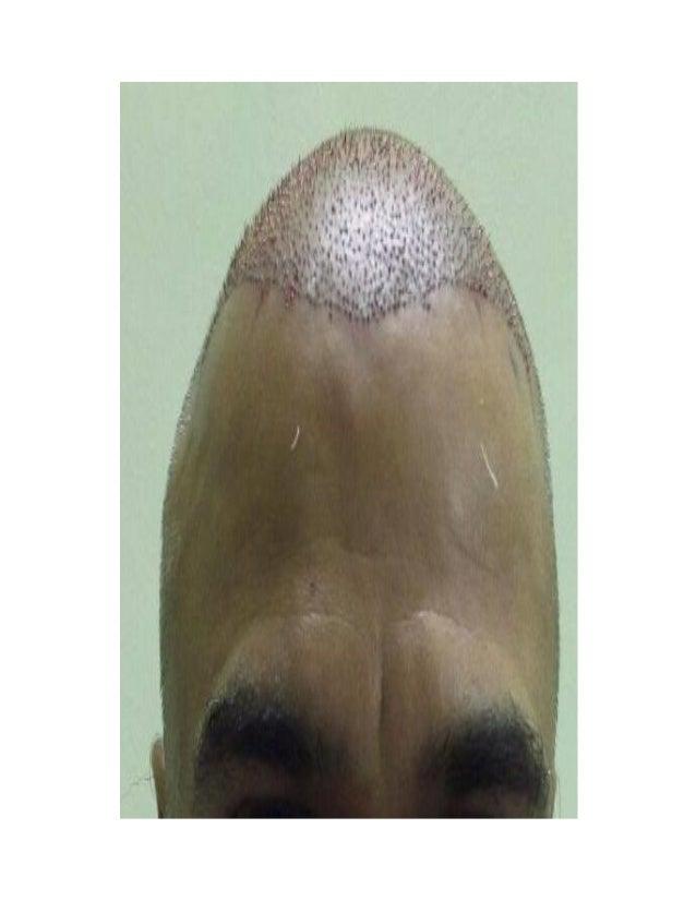 Hair transplant in jaipur Slide 2