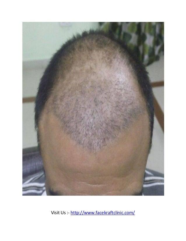 Hair transplant in jaipur Slide 3