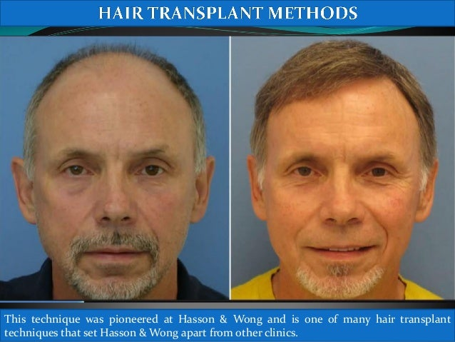 Hair Transplant Mind Blowing Results