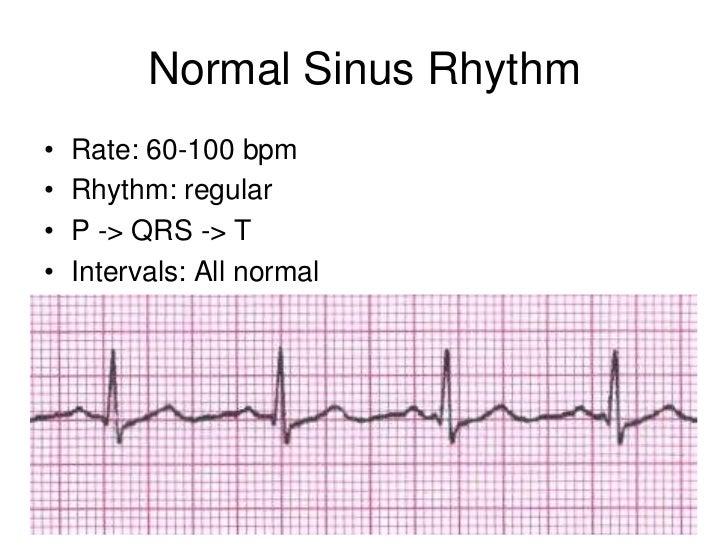 ... 20. Normal Sinus Rhythm• ...