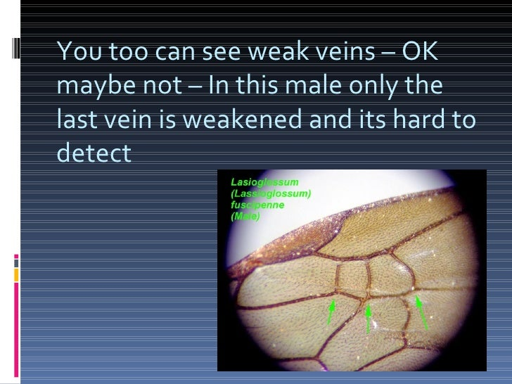 You too can see weak veins – OK maybe not – In this male only the last vein is weakened and its hard to detect