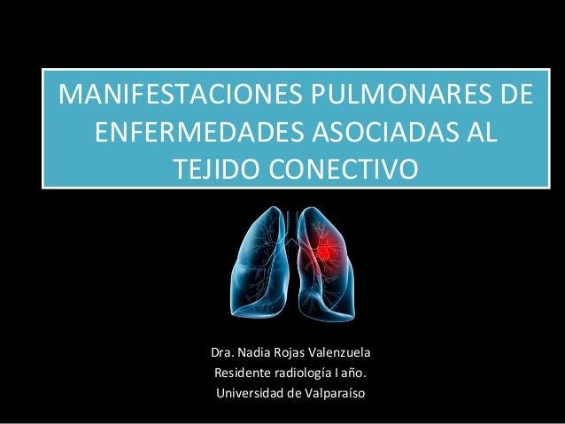MANIFESTACIONES PULMONARES DE ENFERMEDADES ASOCIADAS AL TEJIDO CONECTIVO MANIFESTACIONES PULMONARES DE ENFERMEDADES ASOCIA...