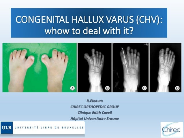 CONGENITAL HALLUX VARUS (CHV): whow to deal with it? R.Elbaum CHIREC ORTHOPEDIC GROUP Clinique Edith Cavell Hôpital Univer...