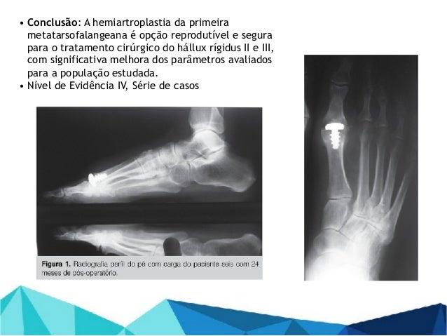 Hállux Rígidus: estudo prospectivo da substituição articular com hemiartroplastia 2013 - Alexandre Leme Godoy dos Santos; ...