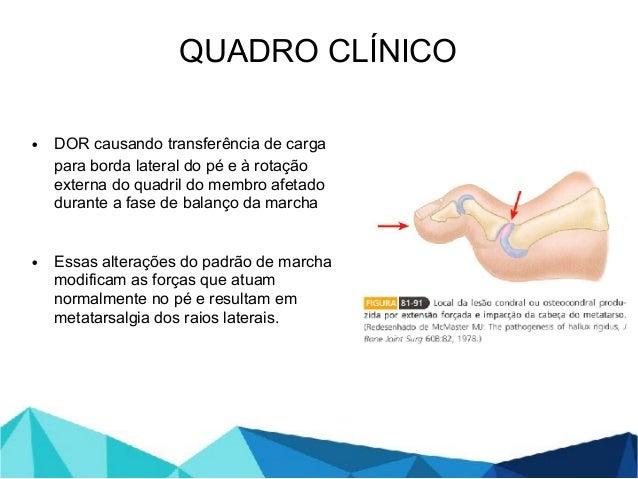 • DOR causando transferência de carga para borda lateral do pé e à rotação externa do quadril do membro afetado durante a ...