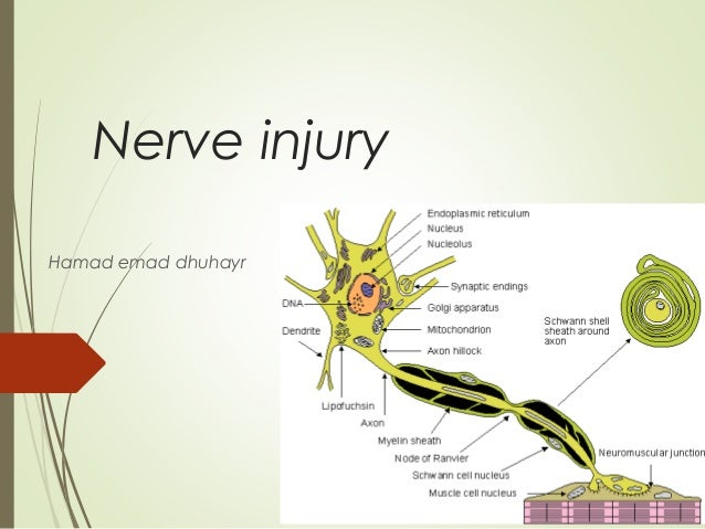 Nerve injury Hamad emad dhuhayr Dr Saleh WaslAllah Alharby www.ksu.edu.sa/DrSalehAlharby
