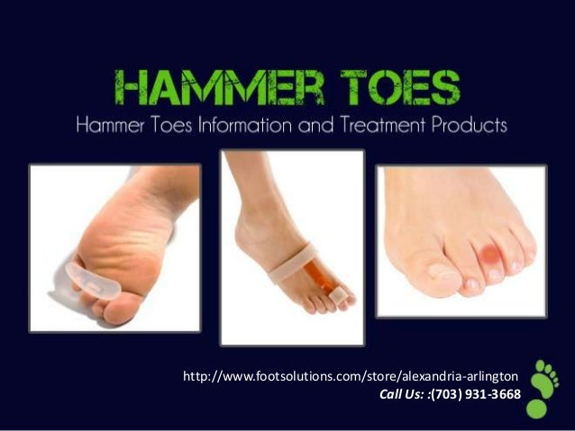 Hammer toes information & treatments