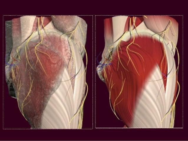Hamstrings Sciatic Nerve
