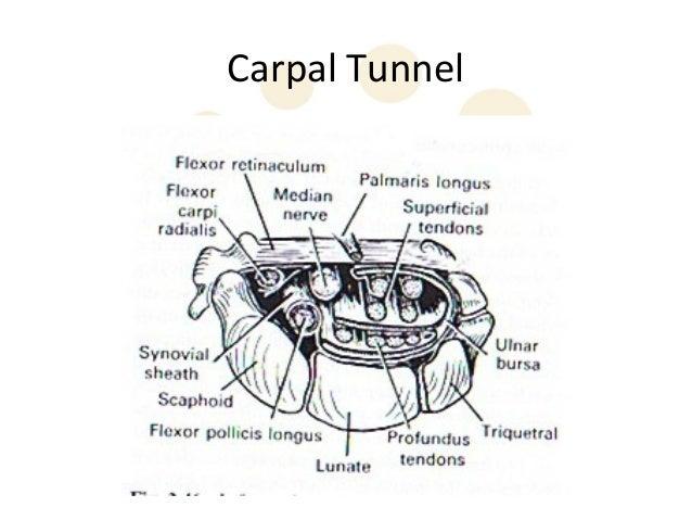 guyon s canal syndrome
