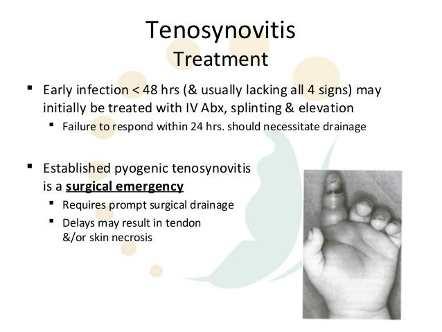 Sanatoriu voronezh tratament osteocondrosis
