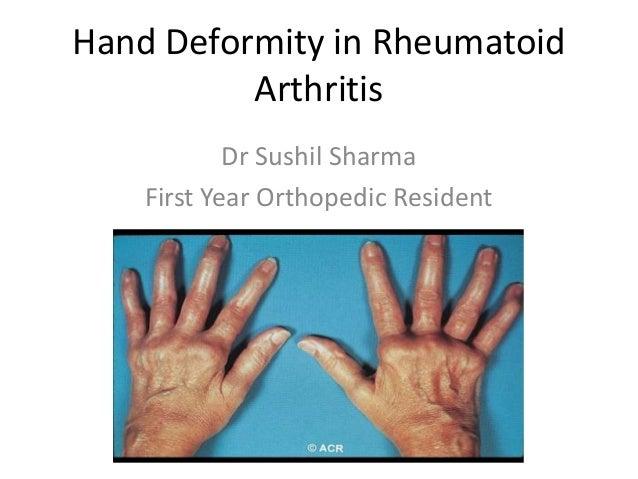 Hand Deformity In Rheumatoid Arthritis