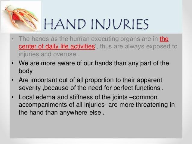 Hand injuries  Slide 2