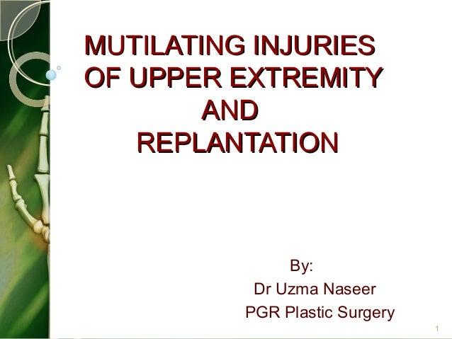 MUTILATING INJURIESMUTILATING INJURIES OF UPPER EXTREMITYOF UPPER EXTREMITY ANDAND REPLANTATIONREPLANTATION By: Dr Uzma Na...