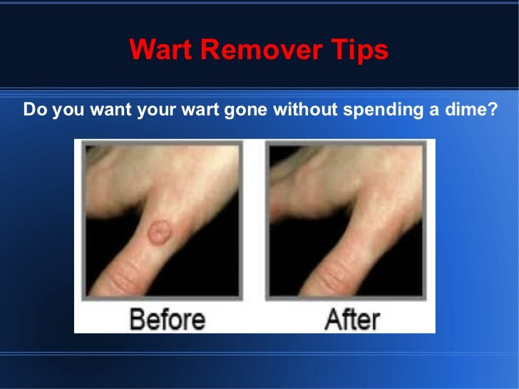 Wart Remover Tips Do you want your wart gone without spending a dime?