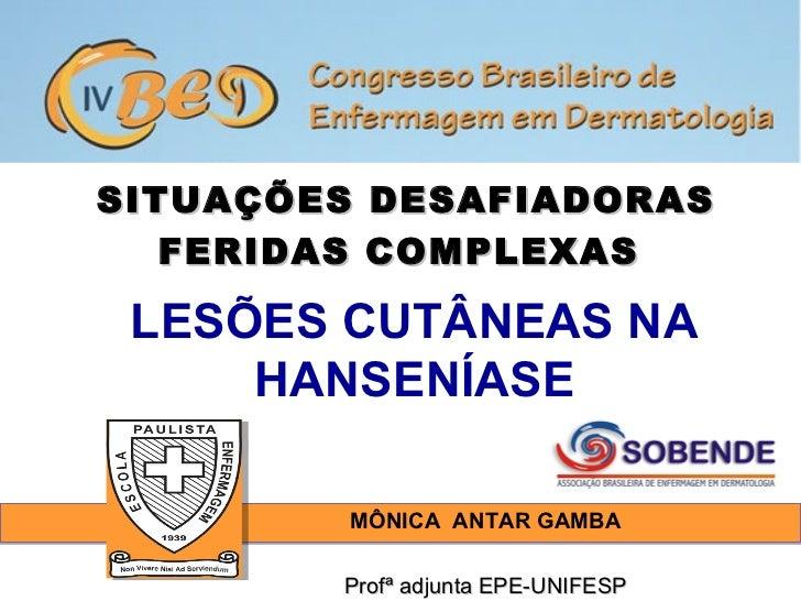 SITUAÇÕES DESAFIADORAS   FERIDAS COMPLEXAS LESÕES CUTÂNEAS NA     HANSENÍASE         MÔNICA ANTAR GAMBA        Profª adjun...
