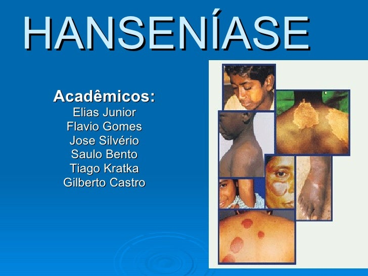 HANSENÍASE Acadêmicos: Elias Junior Flavio Gomes Jose Silvério Saulo Bento Tiago Kratka Gilberto Castro