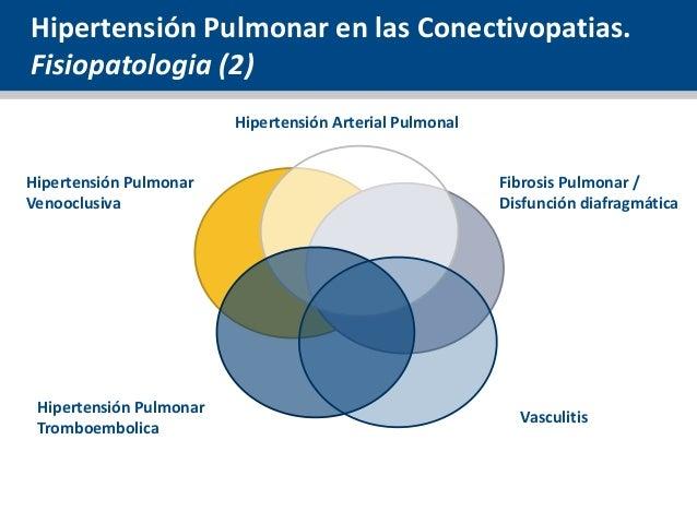 Ocho temas más típicos con Que es la hipertensión