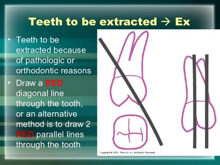 Dental Charting Symbols Examples Heartpulsar
