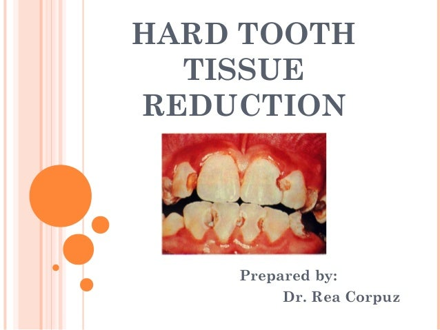 HARD TOOTH  TISSUEREDUCTION    Prepared by:         Dr. Rea Corpuz